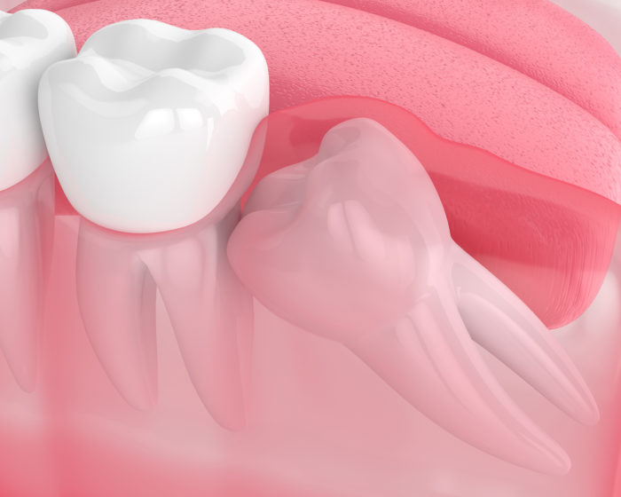 Services-Wisdom Teeth Extractions