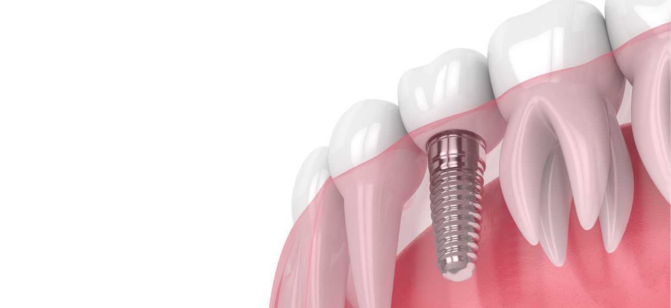 Implants/Advanced Dentistry